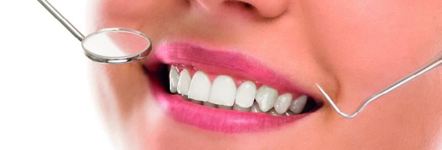 Conheça os serviços odontológicos estéticos do SESCAP-PR em Curitiba